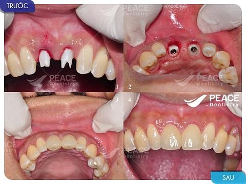 trồng răng implant tekka cho răng cửa