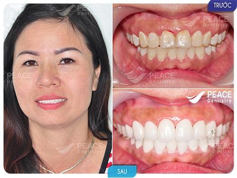 bọc răng sứ nguyên hàm với răng sứ zirconia tổng chi phí 80 triệu