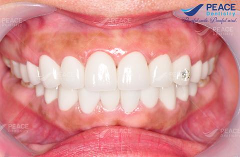 bọc sứ nguyên hàm cung răng hài hòa