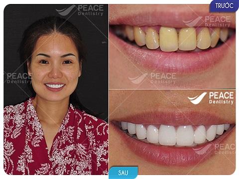 bọc 20 răng sứ cao cấp zirconia với giá 90 triệu