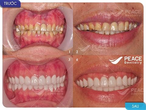bọc răng sứ nguyên hàm với giá 90 triệu