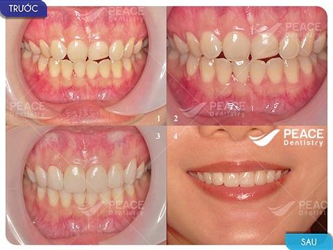 dán 4 mặt sứ veneer khắc phục răng thưa, ngắn, mẻ