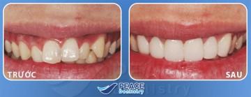 bọc răng sứ chỉ mất 5 ngày