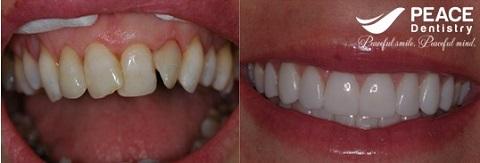 bọc sứ cho răng xô lệch nhiễm màu