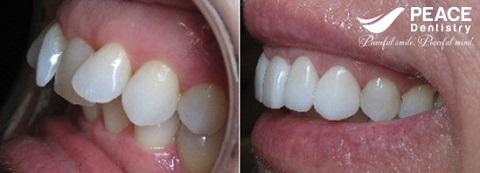 bọc sứ cho 2 răng cửa mọc lệch