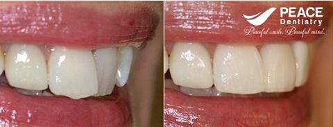 bọc sứ cho 1 răng cửa mọc lệch