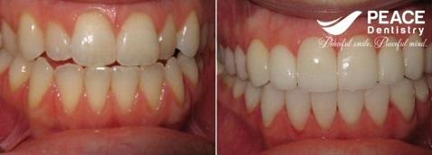 bọc 4 răng sứ cho 4 răng cửa không đều