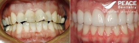 bọc 4 răng sứ cho răng mọc lệch hàm trên