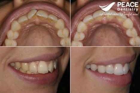 bọc sứ cho răng mọc lệch hình chữ v