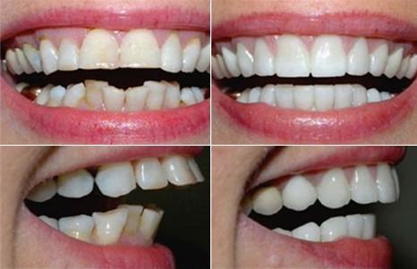 bọc sứ cho răng mọc lệch khểnh hàm dưới