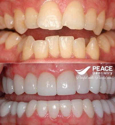 bọc sứ nguyên hàm cho răng mọc lệch tối màu