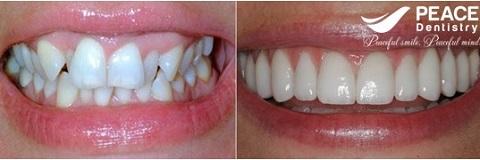 bọc sứ cho răng xô lệch kích thước không đều