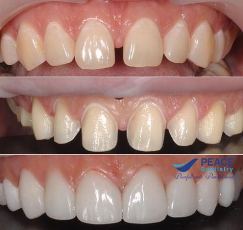 bọc sứ cho răng thưa kèm răng nhiễm kháng sinh