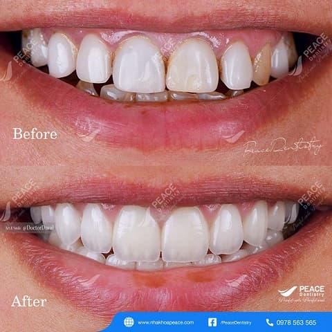 bọc sứ toàn hàm màu răng trắng sáng tương đối