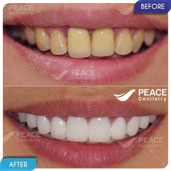 bọc sứ nguyên hàm màu răng trắng sáng tự nhiên