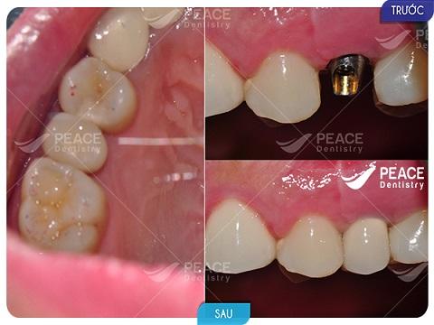 trồng răng implant tekka cho răng nanh