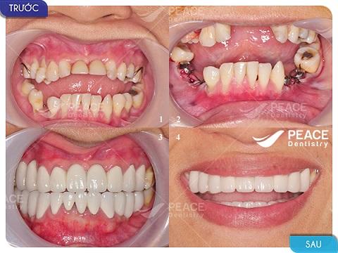 cấy implant toàn hàm