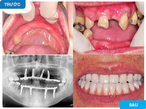 trồng implant toàn hàm