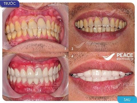 bọc 21 răng sứ titan với chi phí 60 triệu