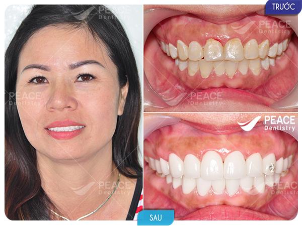 bọc 20 răng sứ cercon cho răng tối màu