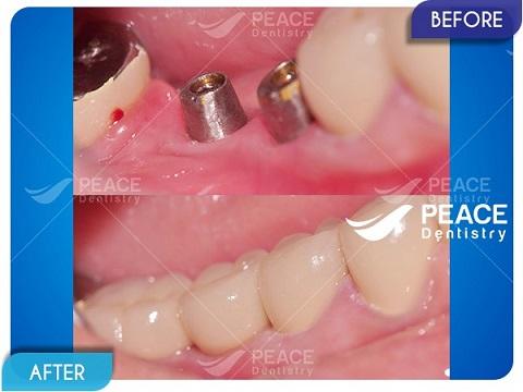 trồng 2 trụ implant tekka cho răng hàm