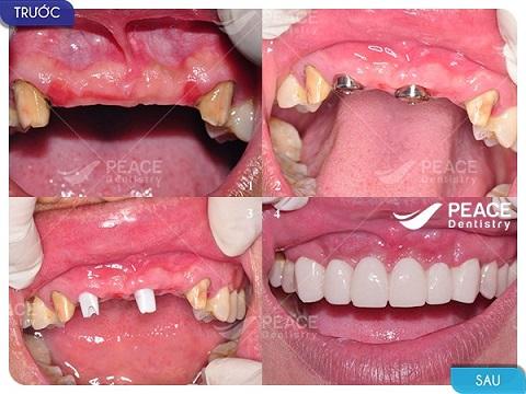 trồng 2 trụ implant tekka khôi phục 4 răng cửa