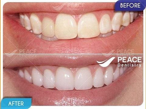 mặt dán sứ veneer bảo tồn tối đa răng thật