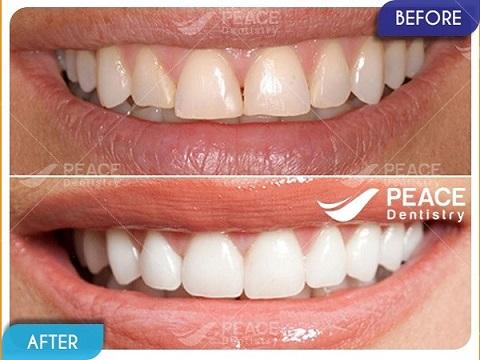 mặt dán sứ veneer cho răng tương đối đều không xô lệch nhiều