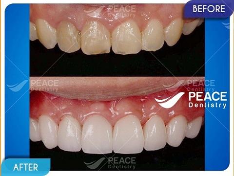 mặt dán sứ veneer cho răng tối màu