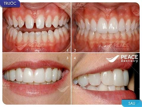 9 mặt dán sứ veneer khắc phục răng thưa